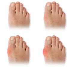 df9b0ff391a2 V podstatě největší příčinou tohoto onemocnění je nošení nevhodné obuvi do  špičky. Tato obuv deformuje prsty u nohou tak dlouho